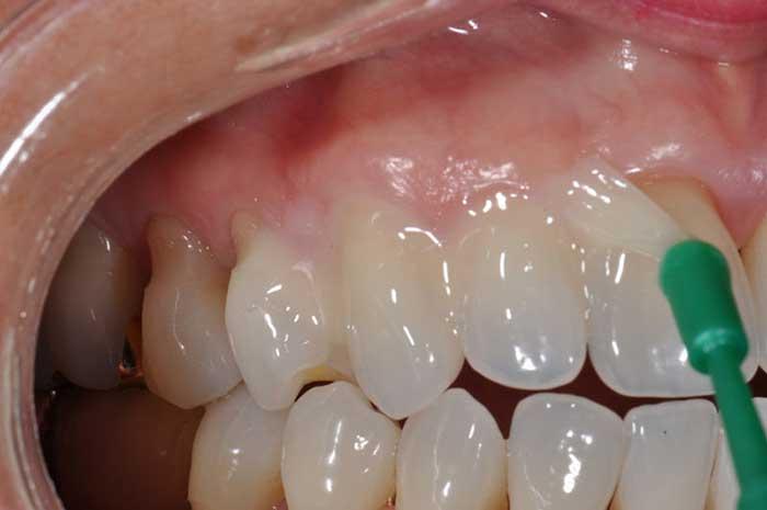 Fluoride teeth treatment at Saddleback Dental Centre